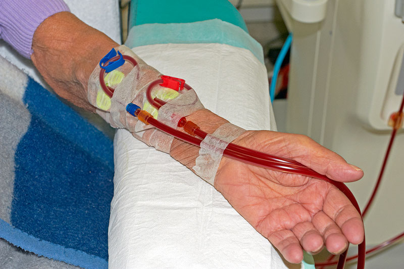Dialyse Shunt