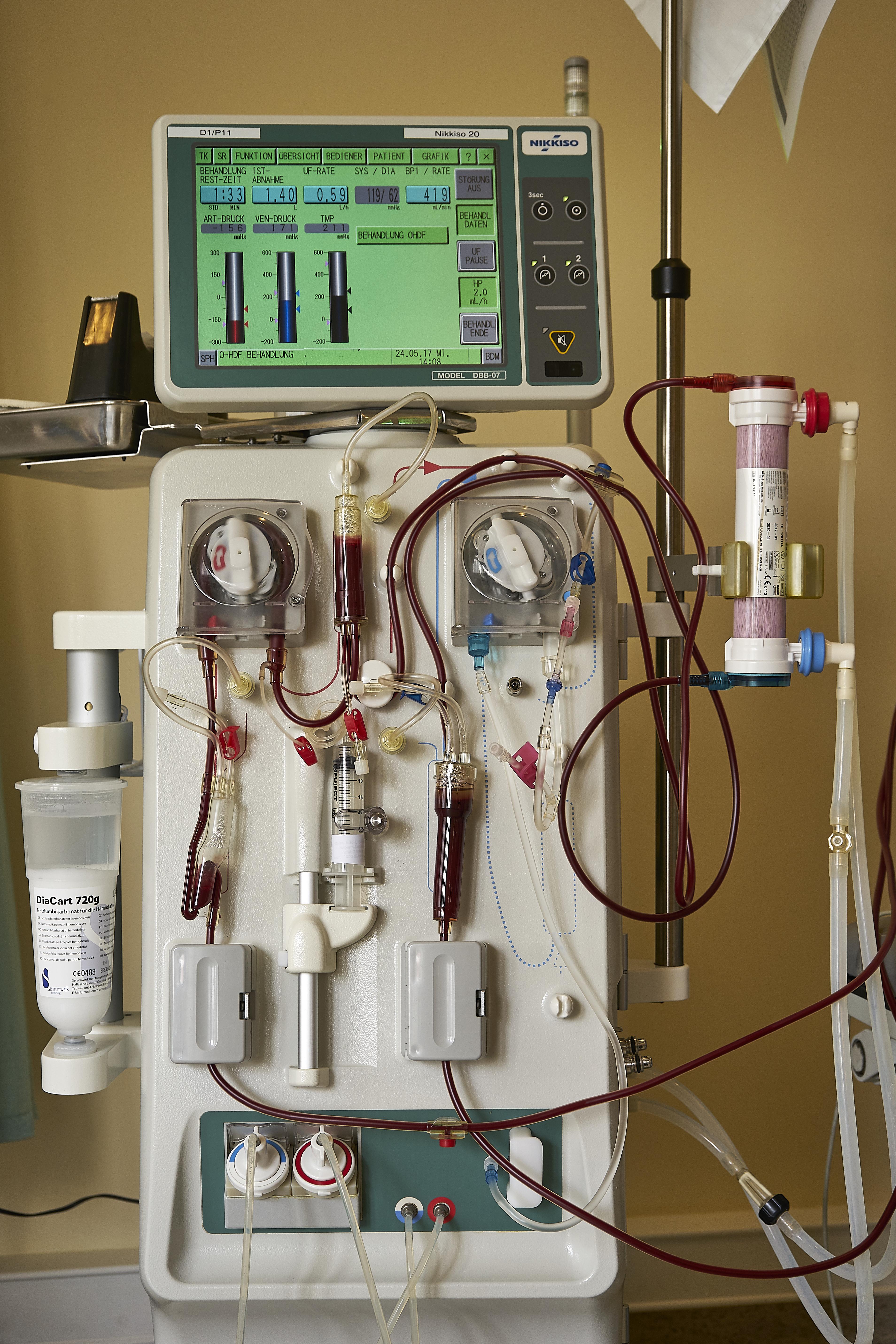 Dialysebehandlung