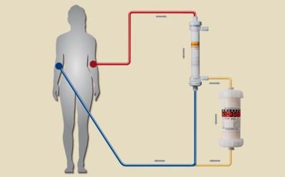 Schematische Darstellung der Apherese mit Adsorbermembran